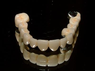 dental denture